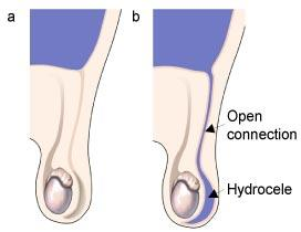 a Normal development b An open connection causing a hydrocele